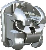 metal-braces-2